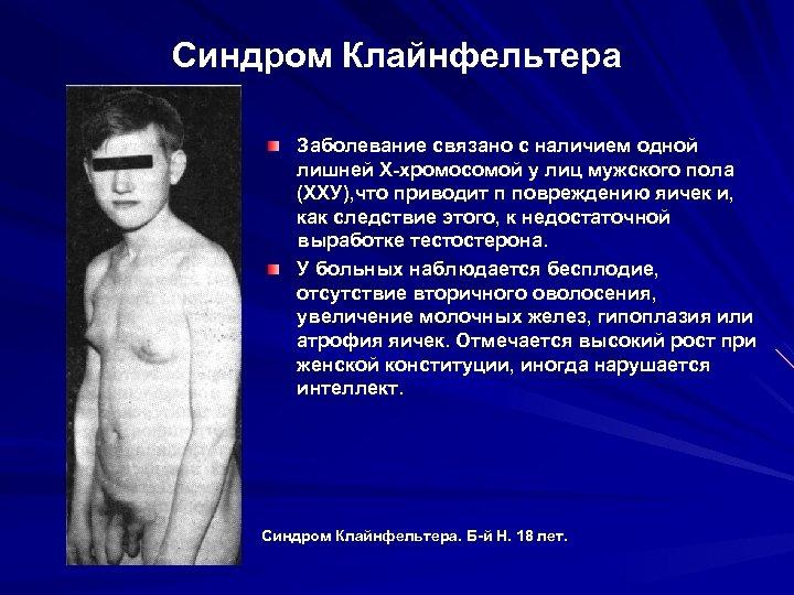 Синдром Клайнфельтера Заболевание связано с наличием одной лишней Х-хромосомой у лиц мужского пола (ХХУ),