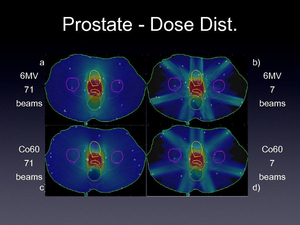 Prostate - Dose Dist. a) b) 6 MV 71 7 beams Co 60 71