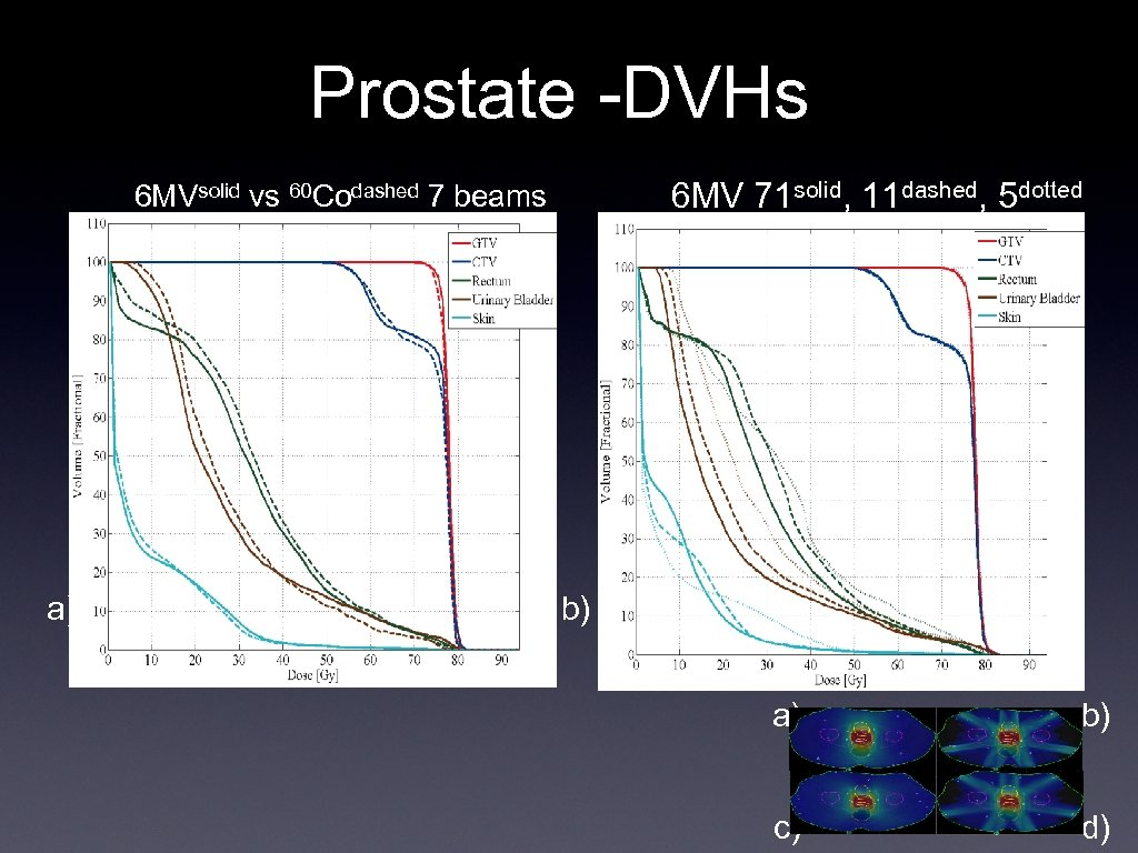 Prostate -DVHs 6 MV 71 solid, 11 dashed, 5 dotted 6 MVsolid vs 60