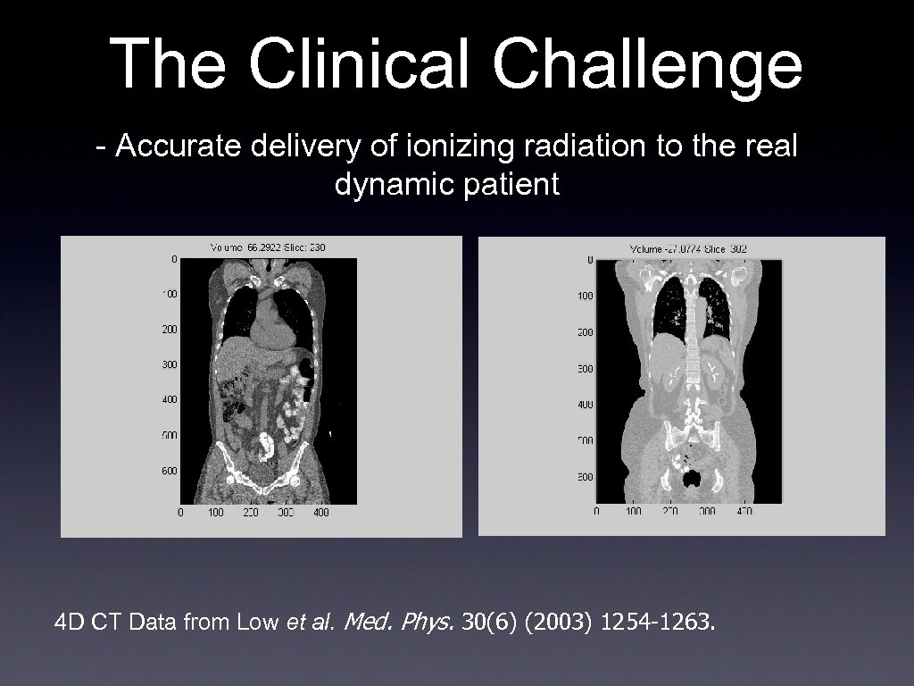 The Clinical Challenge - Accurate delivery of ionizing radiation to the real dynamic patient