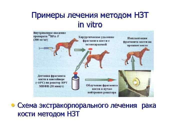 Примеры лечения методом НЗТ in vitro • Схема экстракорпорального лечения рака кости методом НЗТ