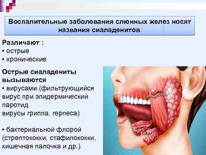 Воспалительные заболевания слюнных желез носят названия сиаладенитов. Различают : • острые • хронические Острые