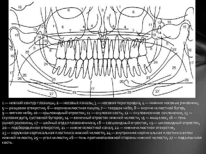 1 — нижний контур глазницы; 2 — носовые каналы; 3 — носовая перегородка; 4