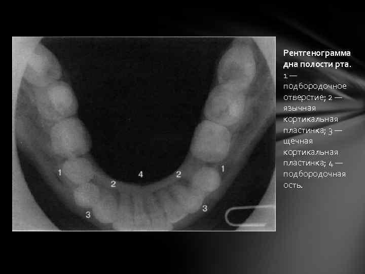 Рентгенограмма дна полости рта. 1— подбородочное отверстие; 2 — язычная кортикальная пластинка; 3 —