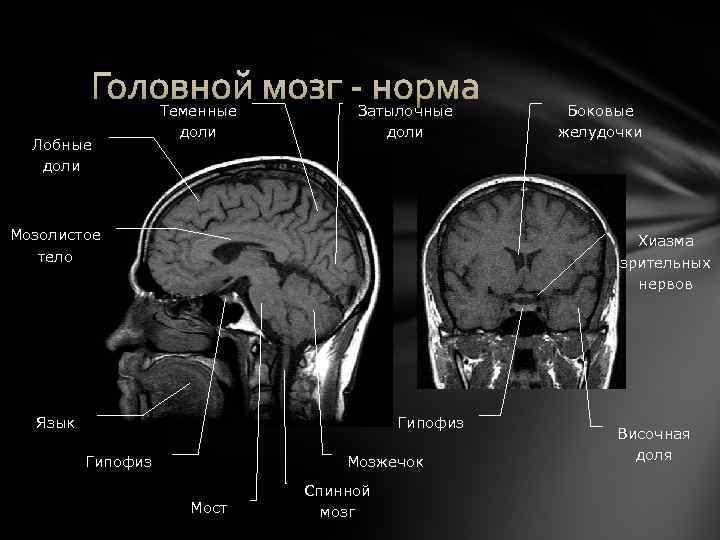 Головной мозг - норма Лобные доли Теменные доли Затылочные доли Мозолистое тело Боковые желудочки