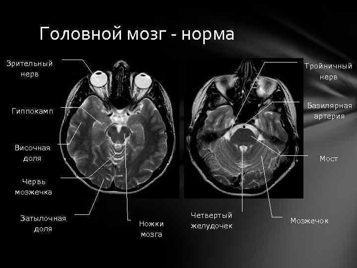 Головной мозг - норма Зрительный нерв Тройничный нерв Гиппокамп Базилярная артерия Височная доля Мост