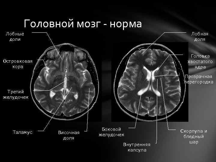 Головной мозг - норма Лобные доли Лобная доля Головка хвостатого ядра Островковая кора Прозрачная