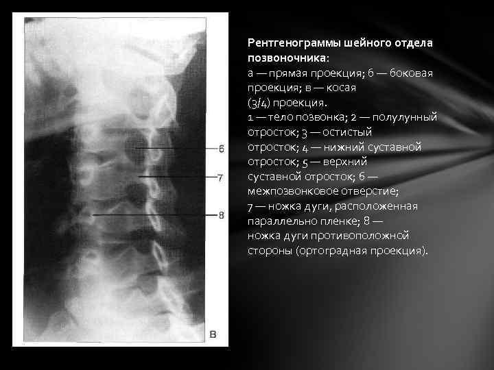 Рентгенограммы шейного отдела позвоночника: а — прямая проекция; б — боковая проекция; в —