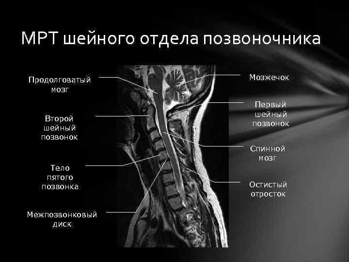 МРТ шейного отдела позвоночника Продолговатый мозг Второй шейный позвонок Мозжечок Первый шейный позвонок Спинной
