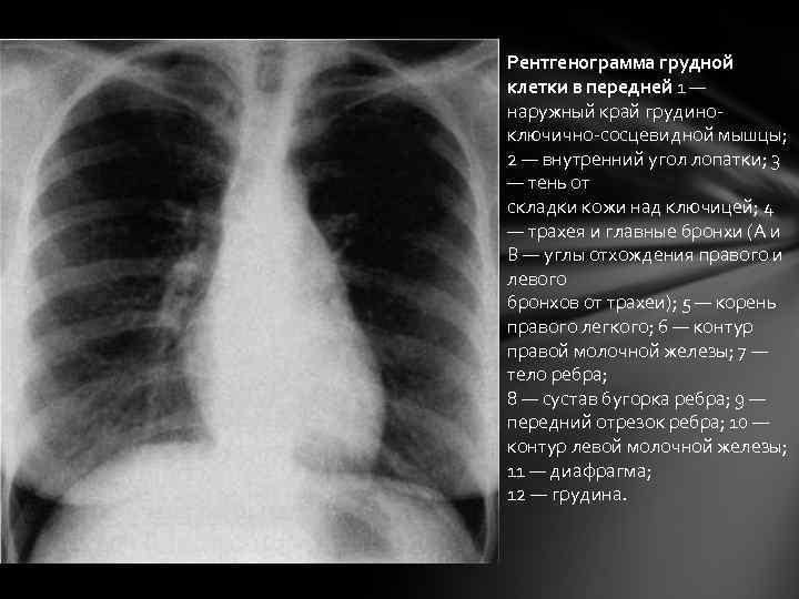 Рентгенограмма грудной клетки в передней 1 — наружный край грудиноключично-сосцевидной мышцы; 2 — внутренний