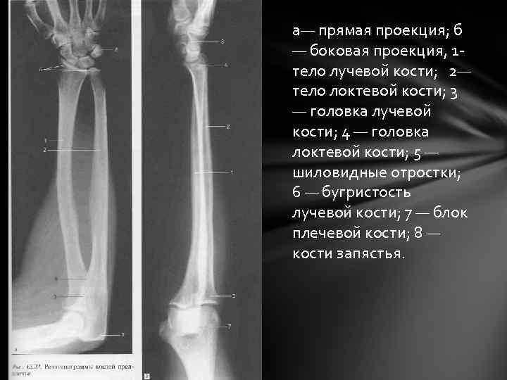 а— прямая проекция; б — боковая проекция, 1 тело лучевой кости; 2— тело локтевой