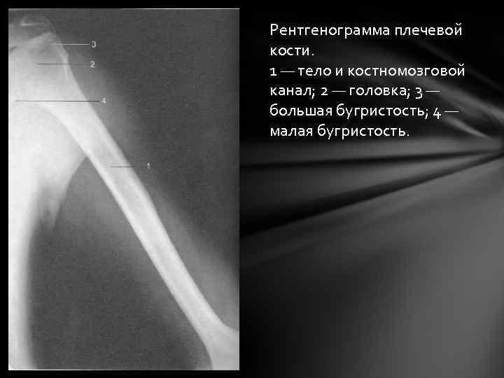 Рентгенограмма плечевой кости. 1 — тело и костномозговой канал; 2 — головка; 3 —