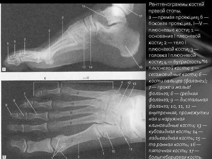 Рентгенограммы костей правой стопы. а — прямая проекция; б — боковая проекция. I—V —