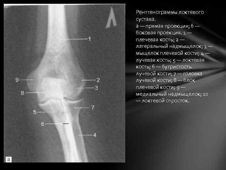 Рентгенограммы локтевого сустава. а — прямая проекция; б — боковая проекция. 1 — плечевая