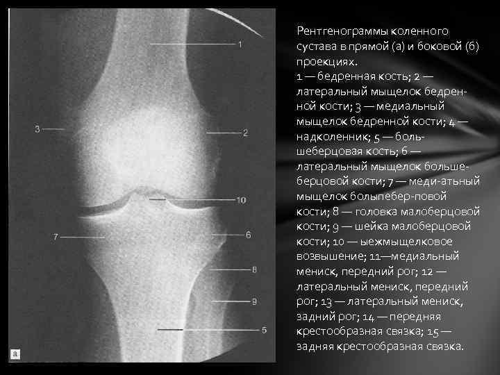 Рентгенограммы коленного сустава в прямой (а) и боковой (б) проекциях. 1 — бедренная кость;