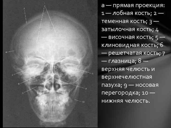 а — прямая проекция: 1 — лобная кость; 2 — теменная кость; 3 —