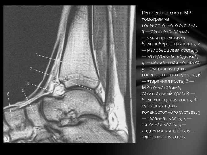 Рентгенограмма и MPтомограмма голеностопного сустава. а — рентгенограмма, прямая проекция: 1 — большеберцо-вая кость,