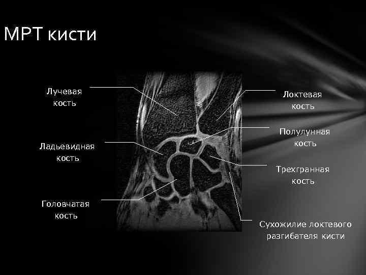 МРТ кисти Лучевая кость Ладьевидная кость Локтевая кость Полулунная кость Трехгранная кость Головчатая кость