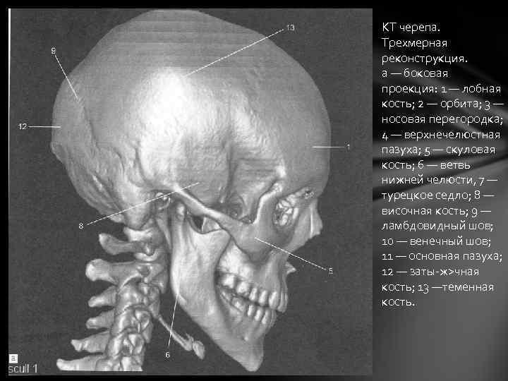 КТ черепа. Трехмерная реконструкция. а — боковая проекция: 1 — лобная кость; 2 —