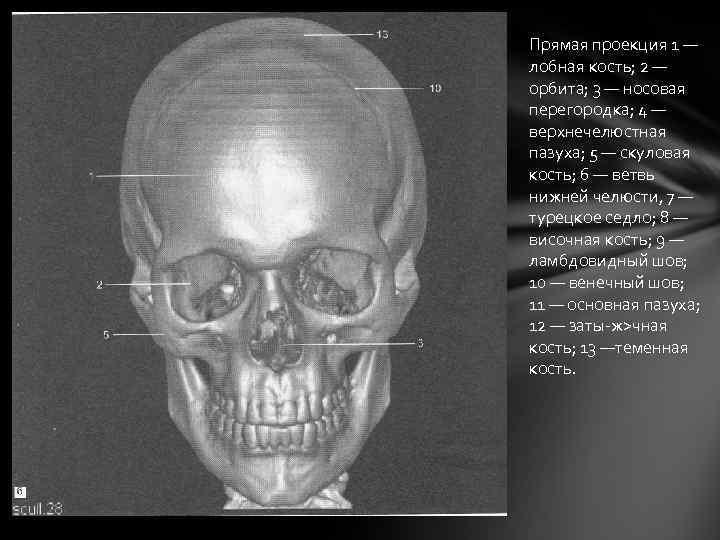 Прямая проекция 1 — лобная кость; 2 — орбита; 3 — носовая перегородка; 4