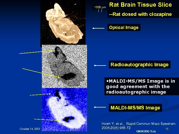 1000 µm Rat Brain Tissue Slice --Rat dosed with clozapine Optical Image Radioautographic Image
