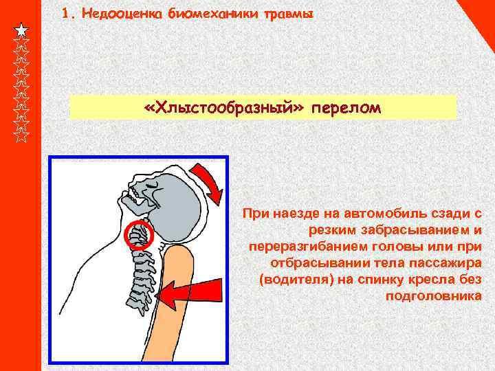1. Недооценка биомеханики травмы «Хлыстообразный» перелом При наезде на автомобиль сзади с резким забрасыванием