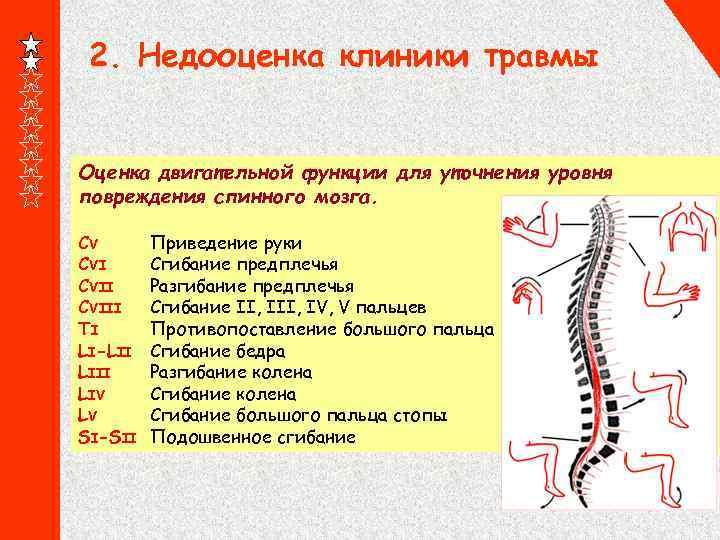 2. Недооценка клиники травмы Оценка двигательной функции для уточнения уровня повреждения спинного мозга. CV