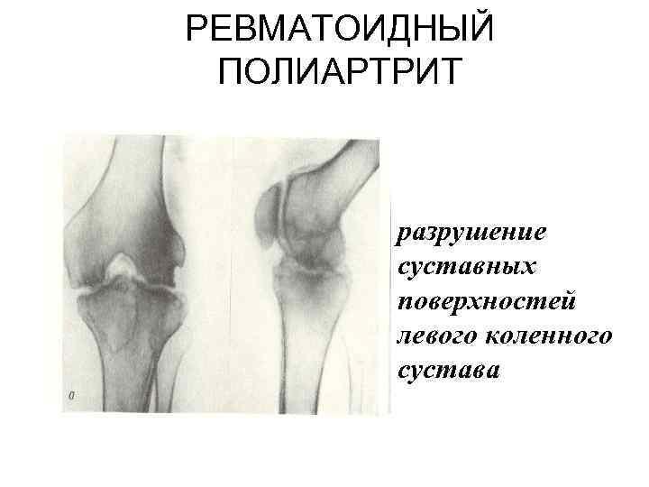 РЕВМАТОИДНЫЙ ПОЛИАРТРИТ разрушение суставных поверхностей левого коленного сустава