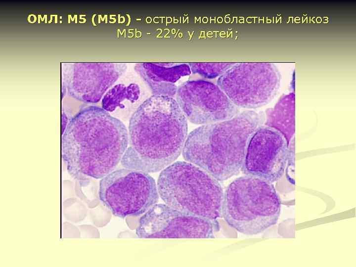 ОМЛ: М 5 (М 5 b) - острый монобластный лейкоз М 5 b -