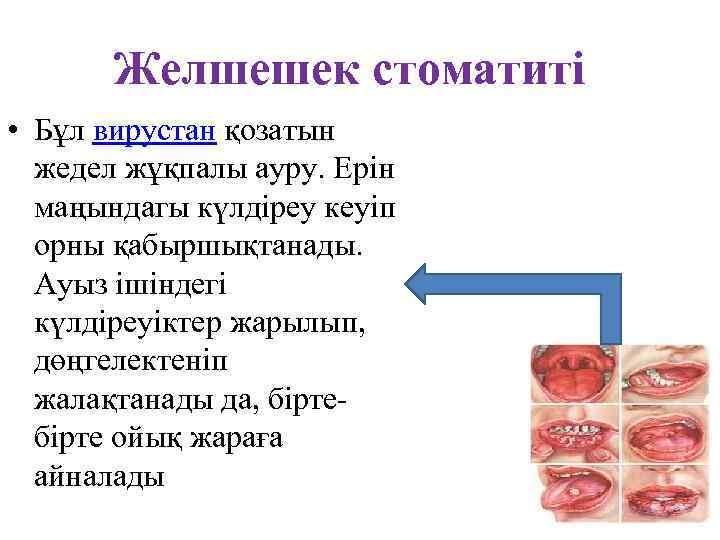 Желшешек стоматиті • Бұл вирустан қозатын жедел жұқпалы ауру. Ерін маңындагы күлдіреу кеуіп орны