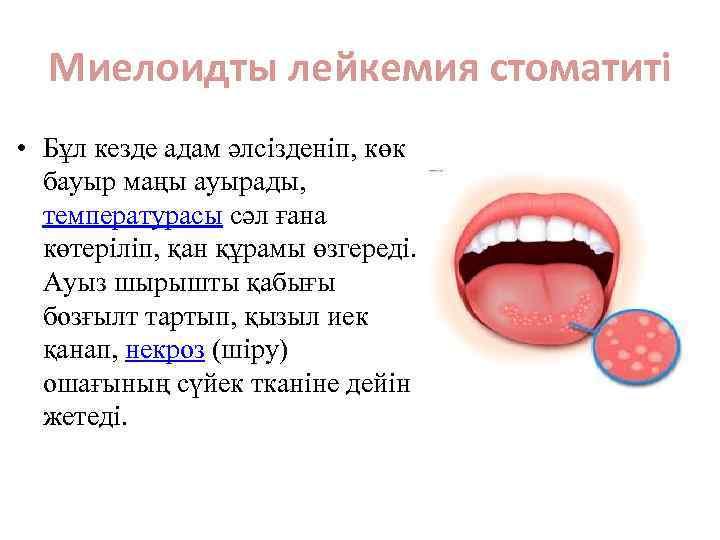 Миелоидты лейкемия стоматиті • Бұл кезде адам әлсізденіп, көк бауыр маңы ауырады, температурасы сәл