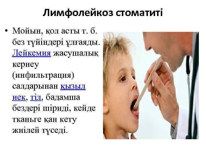 Лимфолейкоз стоматиті • Мойын, қол асты т. б. без түйіндері ұлғаяды. Лейкемия жасушалық кернеу