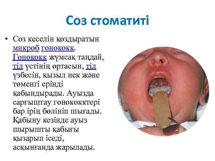 Соз стоматиті • Соз кеселін қоздыратын микроб гонококк. Гонококк жүмсақ таңдай, тіл үстінің ортасын,