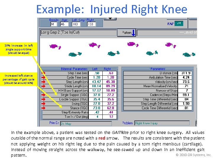 Example: Injured Right Knee 10% increase in left single support time (should be equal)