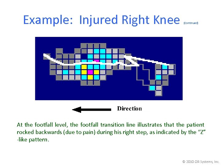 Example: Injured Right Knee (Continued) At the footfall level, the footfall transition line illustrates