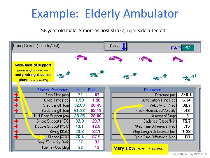 Example: Elderly Ambulator 56 year old male, 3 months post stroke, right side affected