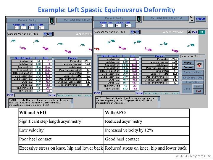 Example: Left Spastic Equinovarus Deformity © 2010 CIR Systems, Inc.