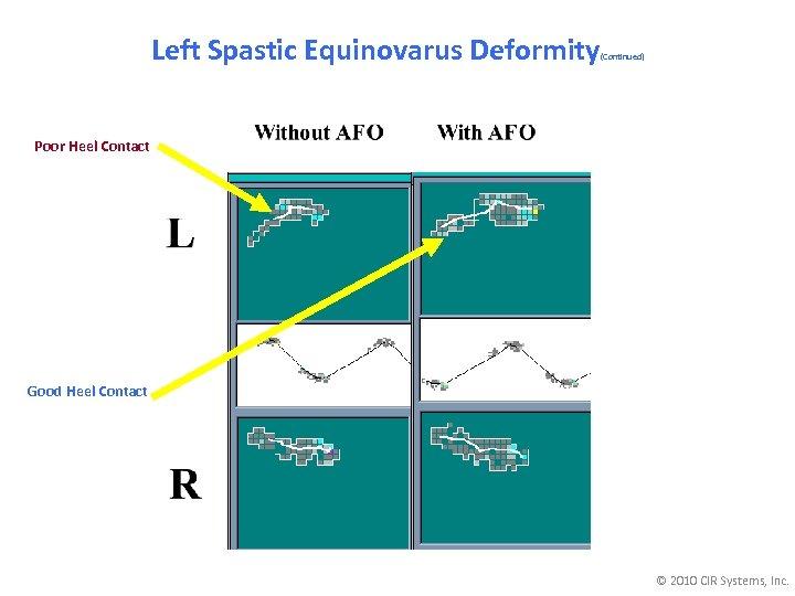 Left Spastic Equinovarus Deformity (Continued) Poor Heel Contact Good Heel Contact © 2010 CIR