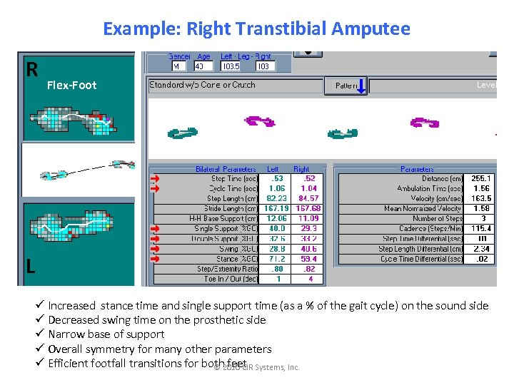 Example: Right Transtibial Amputee R Flex-Foot L ü Increased stance time and single support