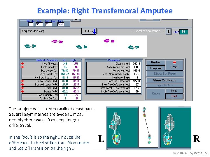Example: Right Transfemoral Amputee The subject was asked to walk at a fast pace.