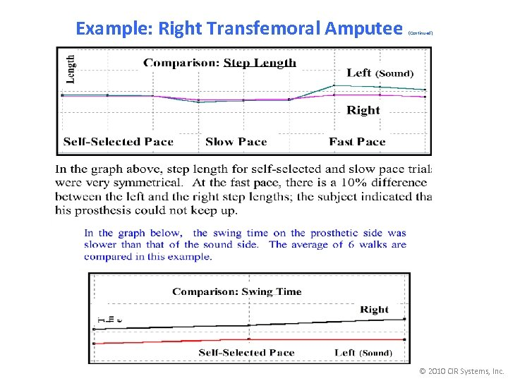 Example: Right Transfemoral Amputee (Continued) © 2010 CIR Systems, Inc.