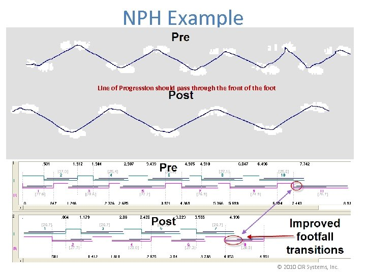 NPH Example Line of Progression should pass through the front of the foot ©