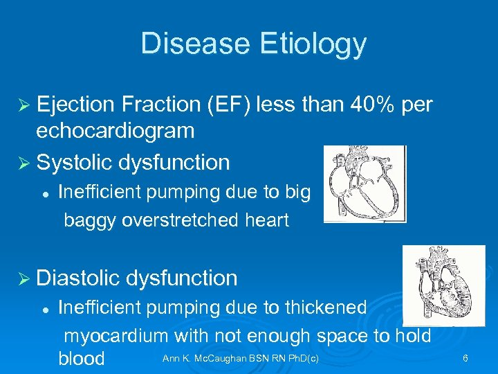 Disease Etiology Ø Ejection Fraction (EF) less than 40% per echocardiogram Ø Systolic dysfunction