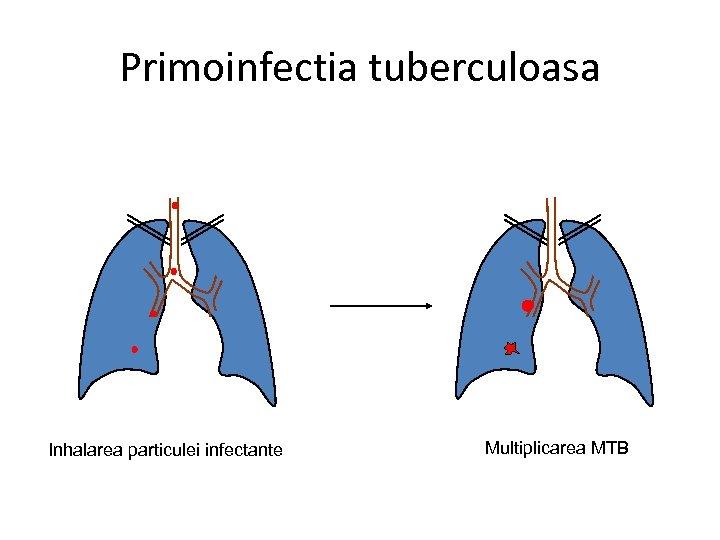 Primoinfectia tuberculoasa Inhalarea particulei infectante Multiplicarea MTB