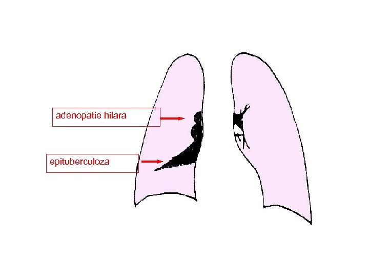adenopatie hilara epituberculoza