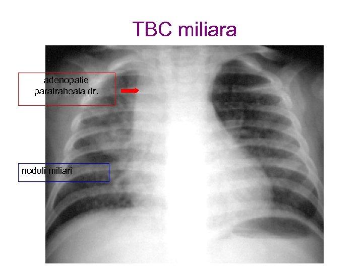 TBC miliara adenopatie paratraheala dr. noduli miliari