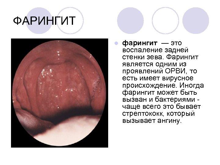 ФАРИНГИТ l фарингит — это воспаление задней стенки зева. Фарингит является одним из проявлений