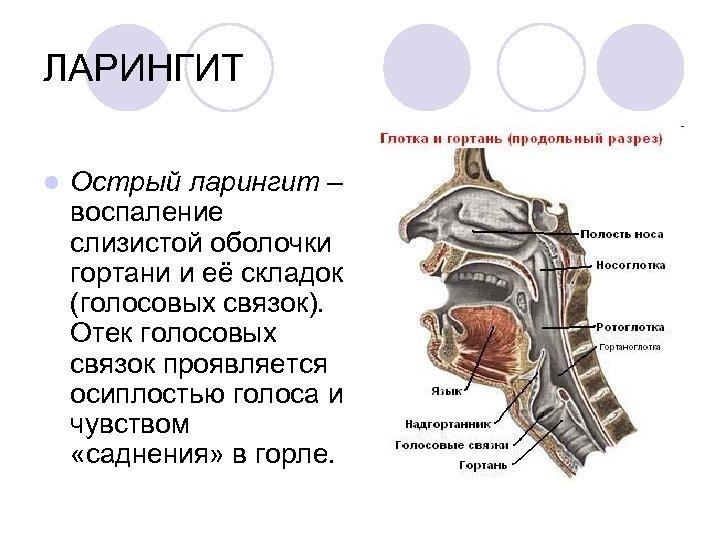ЛАРИНГИТ l Острый ларингит – воспаление слизистой оболочки гортани и её складок (голосовых связок).