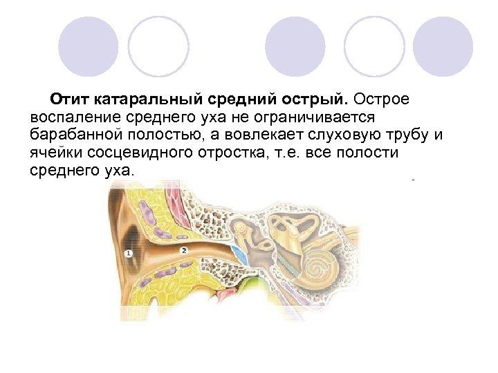 Отит катаральный средний острый. Острое воспаление среднего уха не ограничивается барабанной полостью, а вовлекает