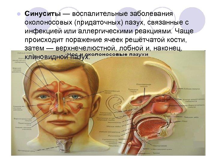 l Cинуситы — воспалительные заболевания околоносовых (придаточных) пазух, связанные с инфекцией или аллергическими реакциями.